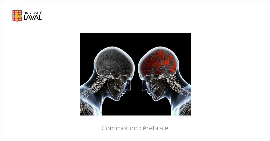 MOOC Commotion cérébrale